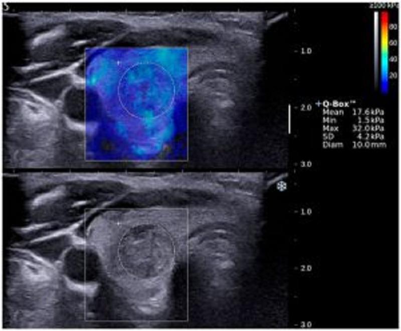 الاستوگرافی پستان