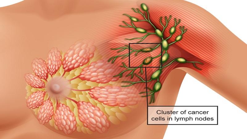 نقش غدد لنفاوی در افزایش خطر بروز سرطان سینه