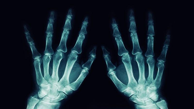 سونوگرافی پستان اصفهان آیا اشعه ایکس و رادیواکتیو برای بدن انسان زیان دارد ؟