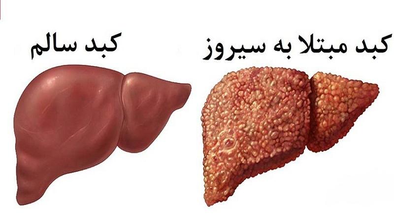 علت و عوارض الاستوگرافی کبد   سونوگرافی پستان اصفهان