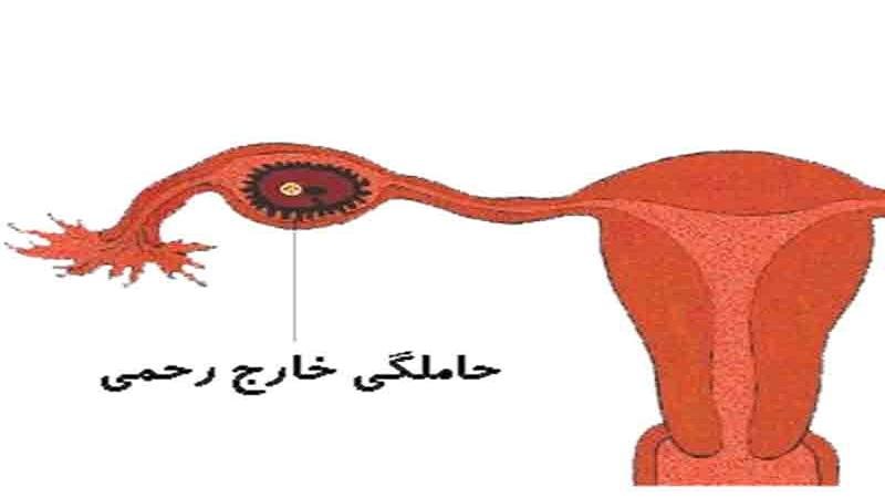 تشخیص بارداری خارج رحمی | سونوگرافی پستان اصفهان