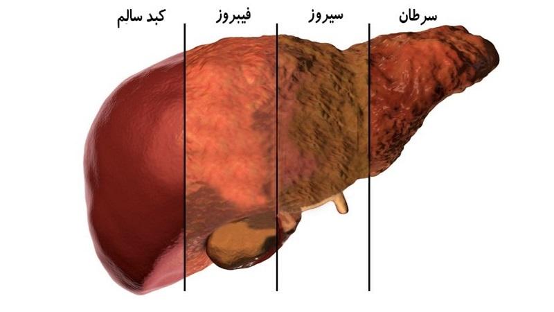 روشهای تشخیص کبد چرب | سونوگرافی پستان اصفهان